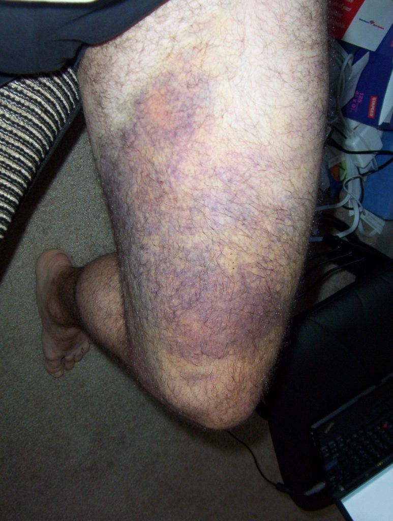 the big bruise