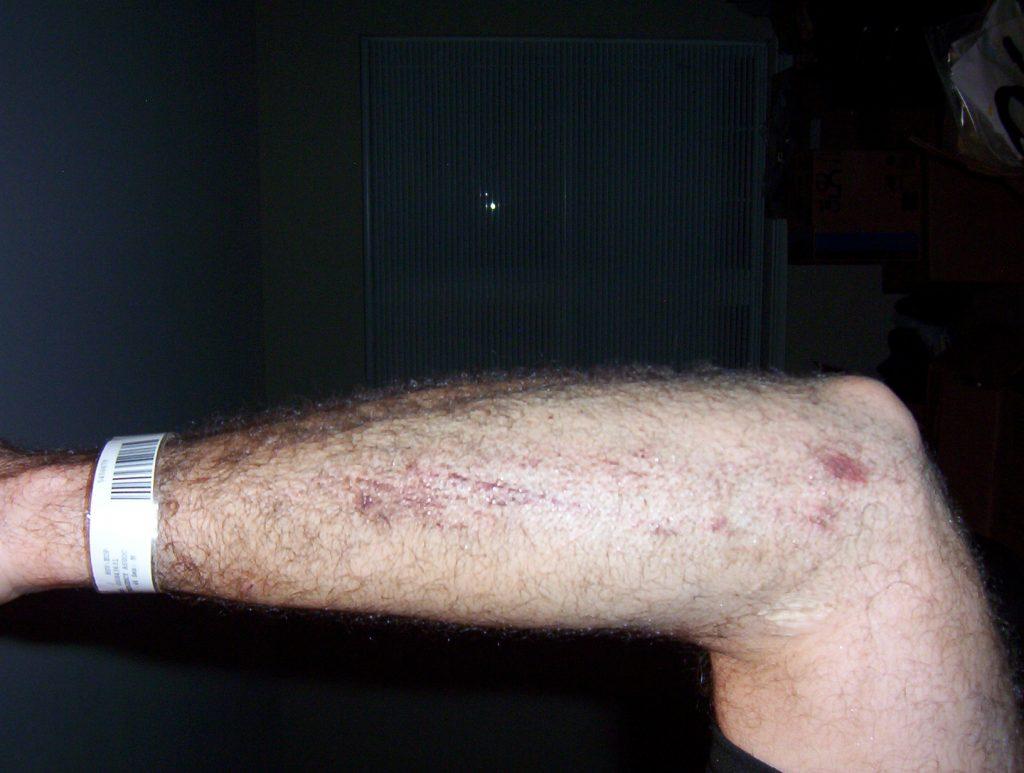 Left forearm is pretty sore...