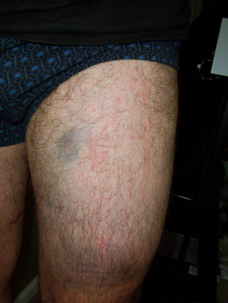 Bruises, left thigh