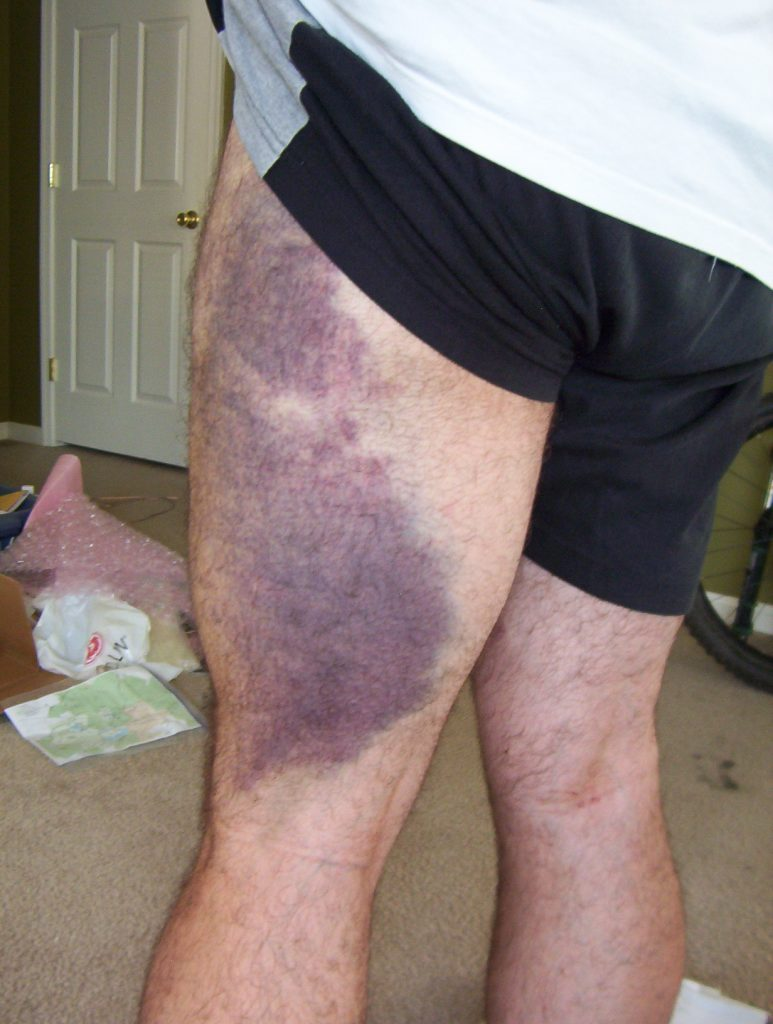 thigh rear